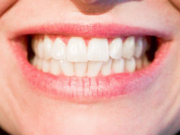 Reposición de dientes ausentes o extraídos