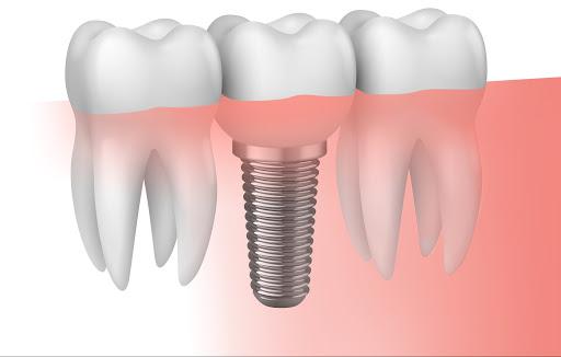 Implante dental. Cuanto duran y como se colocan