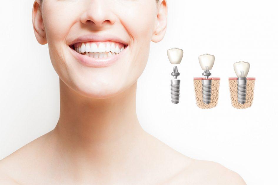 Postoperatorio y cuidado tras implantes dentales