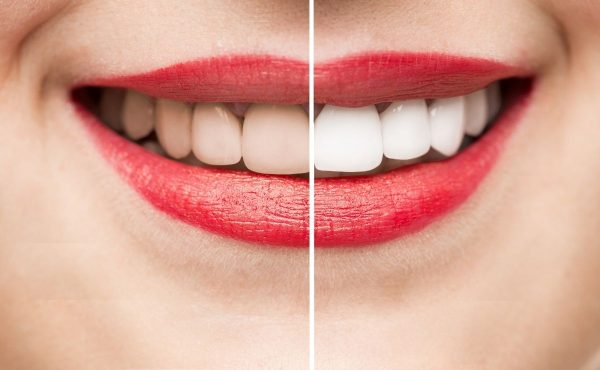 Tipos blanqueamiento dental