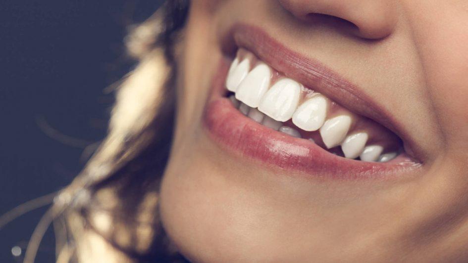Ferulización dental